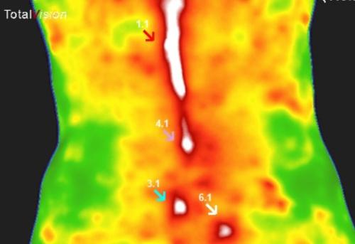 Zgornja slika prikazuje žarične točke v spodnjem predelu hrbta