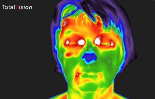 Vnetje očesnih živcev
